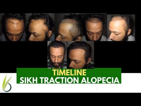 Traction Alopecia in a Sikh Male Boy after hair transplant