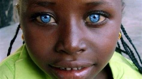 BLACK PEOPLE WITH NATURAL BLUE EYES