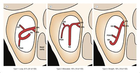 Anatomical Variability of the Maxillary Artery: Findings